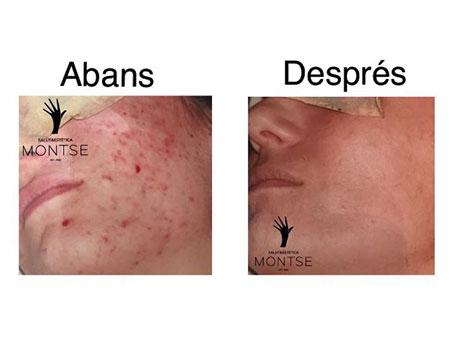 Tractaments per l'acne i les seves marques