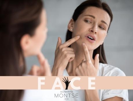 Com impacta l'estrès a la nostra pell?